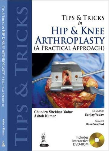 9789350256473: Tips and Tricks in Hip and Knee Arthroplasty: (A Practical Approach) (Tips & Tricks)