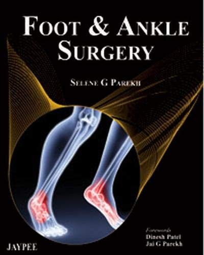 9789350257876: Foot and Ankle Surgery