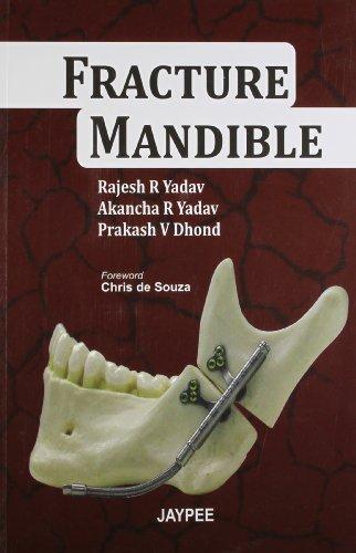 Fracture Mandible: Rajesh R. Yadav,