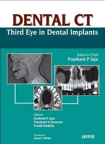 Dental Ct Third Eye in Dental Implants: Prashant P. Jaju