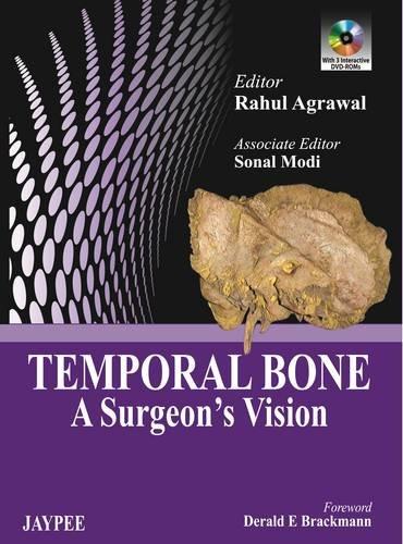 Temporal Bone: A Surgeon?s Vision: Rahul Agarwal, Sonal Modi (Eds) & Derald E. Brackmann (Frwd)