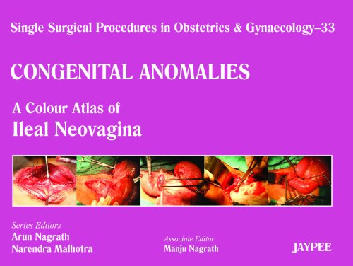 Single Surgical Procedures in Obstetrics and Gynaecology–33: Nagrath
