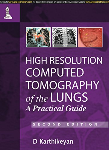 9789350904084: High Resolution Computed Tomography of the Lungs: A Practical Guide
