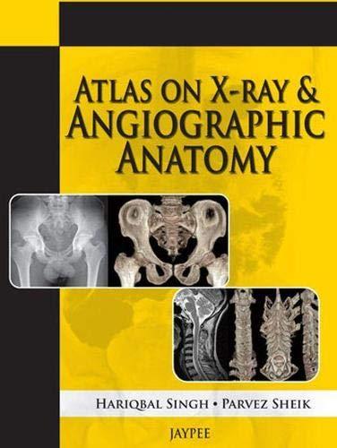 Atlas on X-ray and Angiographic Anatomy: Hariqbal Singh,Parvez Sheik
