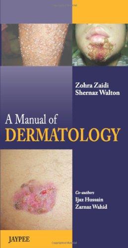 A Manual of Dermatology: Shernaz Walton, Zohra