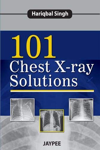 101 Chest X-ray Solutions: Hariqbal Singh
