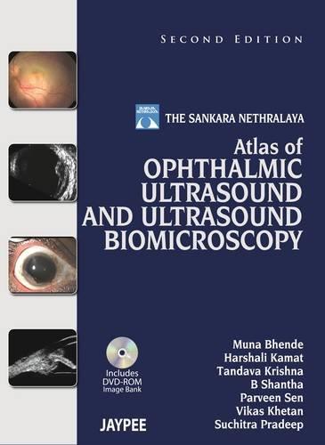 9789350905357: The Sankara Nethralaya Atlas of Ophthalmic Ultrasound and Ultrasound Biomicroscopy