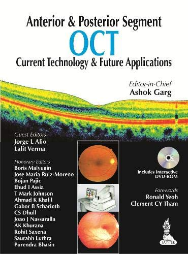 9789350909782: Anterior & Posterior Segment OCT: Current Technology & Future Applications