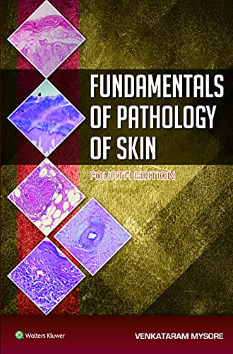 FUNDAMENTALS OF PATHOLOGY OF SKIN 4/E: VENKATARAM MYSORE