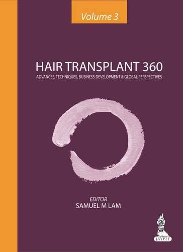 9789351520702: Hair Transplant 360: Advances, Techniques, Business Development, and Global Perspectives