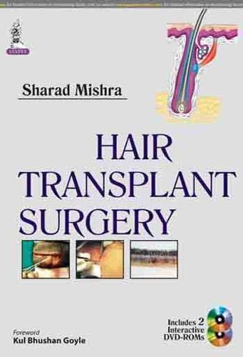 9789351520795: Hair Transplant Surgery