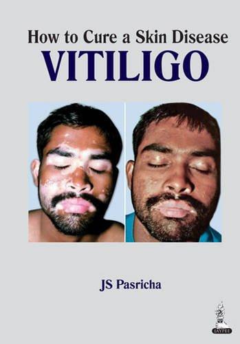 How to Cure a Skin Disease Vitiligo: J.S. Pasricha