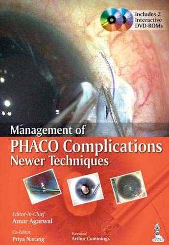 Management of Phaco Complications Newer Techniques: Amar Agarwal (Ed.)