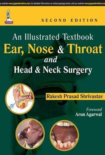 An Illustrated Textbook Ear, Nose and Throat and Head and Neck Surgery (Second Edition): Rakesh ...