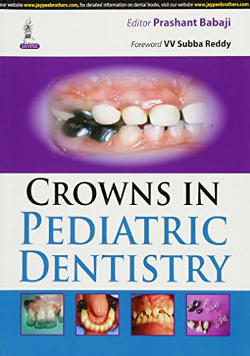 Crowns in Pediatric Dentistry: Prashant Babaji (Ed.) & VV Subba Reddy (Frwd)