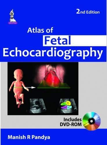 Atlas of Fetal Echocardiography: Manish R Pandey (Author) & S. Suresh (Frwd)
