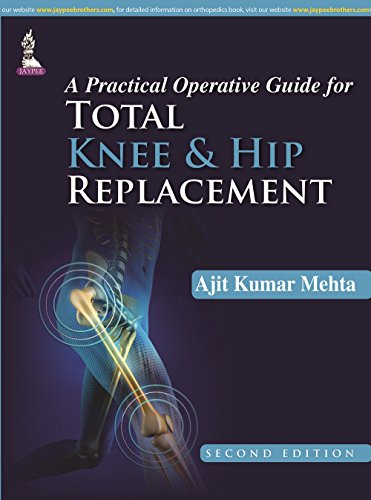 A Practical Operative Guide for Total Knee: Ajit Kumar Mehta