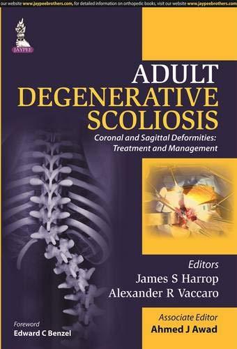 Adult Degenerative Scoliosis: Coronal and Sagittal Deformities (Treatment and Management): James S....