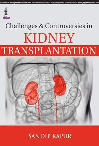 Challenges and Controversies in Kidney Transplantation: Sandip Kapur