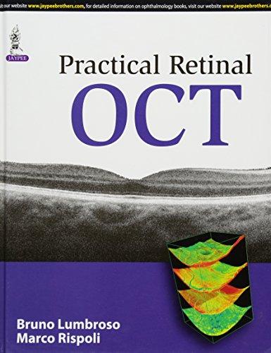 Practical Retinal Oct: Lumbruso, Bruno/ Rispoli,