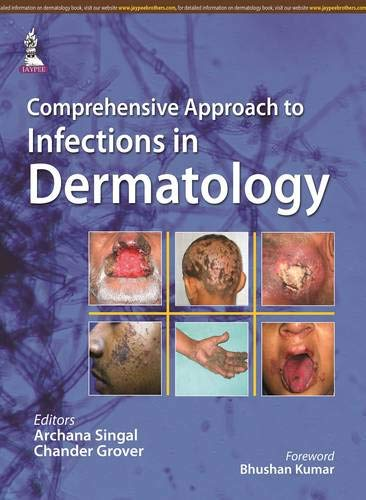 Comprehensive Approach to Infections in Dermatology: Archana Singal, Chander Grover (Eds) & Bhushan...