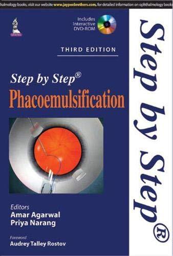 9789351527831: Phacoemulsification (Step by Step)