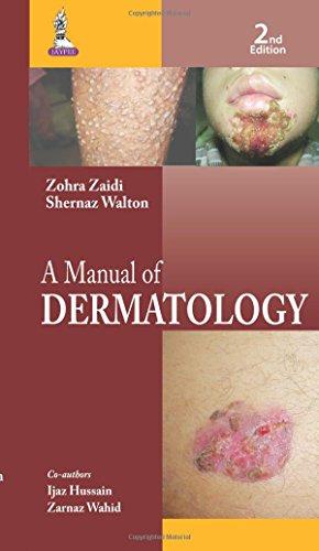 A MANUAL OF DERMATOLOGY: ZAIDI ZOHRA