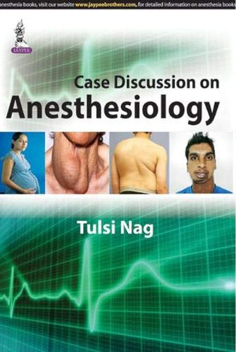 Case Discussion on Anesthesiology: Tulsi Nag