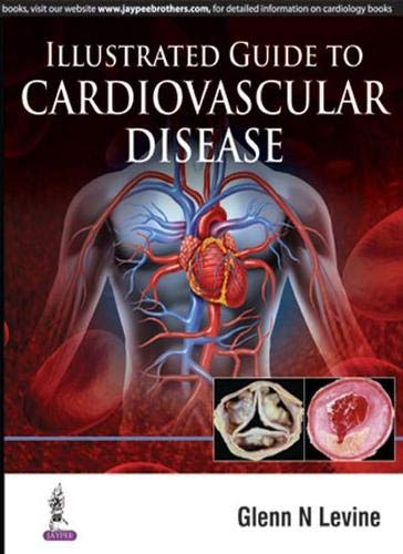 Illustrated Guide to Cardiovascular Disease: Glenn N. Levine