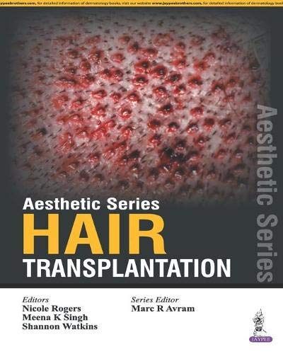 9789351529323: Aesthetic Series - Hair Transplantation