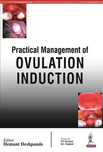 9789352500284: Practical Management of Ovulation Induction