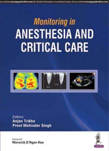 Monitoring in Anesthesia and Critical Care: Anjan Trikha and