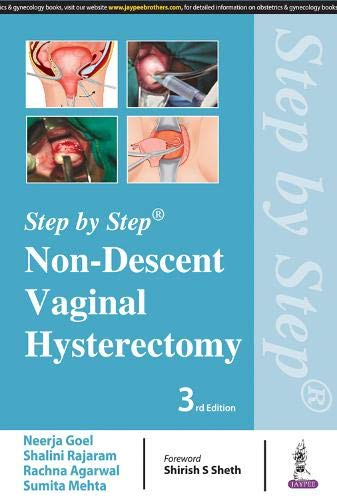 9789352701759: Non-Descent Vaginal Hysterectomy (Step by Step)
