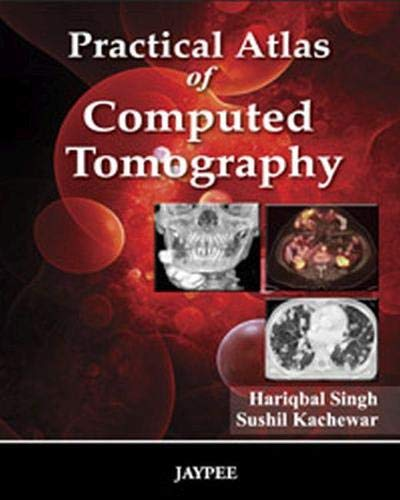 Practical Atlas of Computed Tomography: Hariqbal Singh & Sushil Kachewar