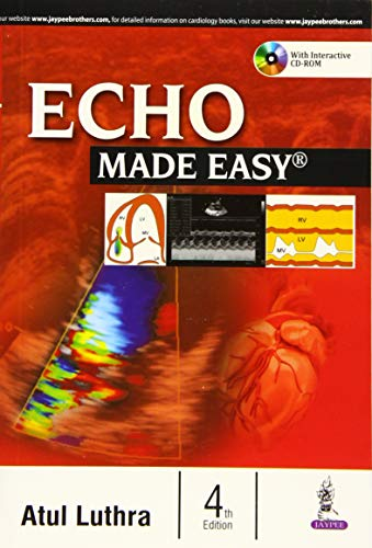 ecg made easy by atul luthra pdf