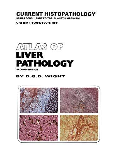 9789401049801: Atlas of Liver Pathology (Current Histopathology)