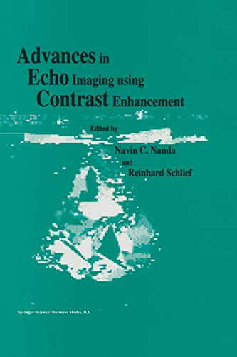 Advances in Echo Imaging Using Contrast Enhancement