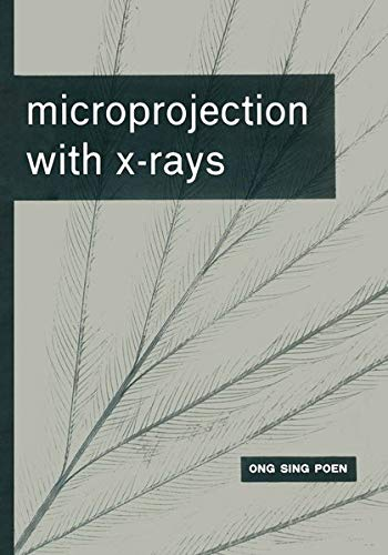 Microprojection with X-Rays: Poen, Ong Sing