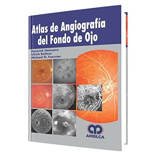 ATLAS DE ANGIOGRAFIA DEL FONDO DE OJO: Heimann, H. -