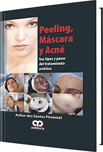 9789588473505: Peeling, Máscara y Acné sus Tipos y Pasos del Tratamiento Estético (Spanish Edition)