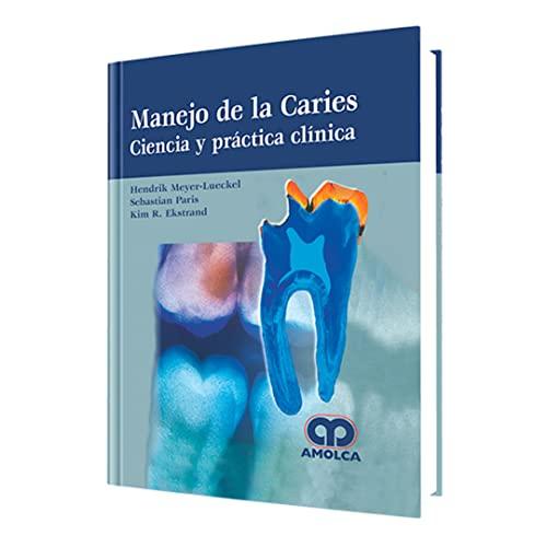 9789588871196: Manejo de la Caries, Ciencia y Práctiva Clínica