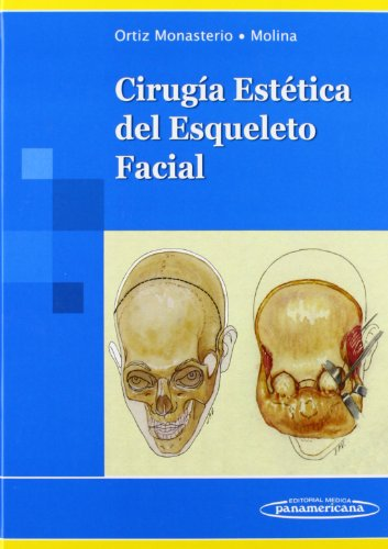 9789687988603: Cirugía Estética del Esqueleto Facial