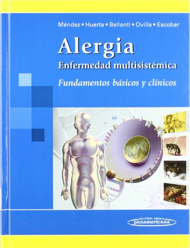 9789687988795: Alergia. Enfermedad multisistemica/ Allergies. Multisystem disease: Fundamentos basicos y clinicos/ Clinical and Basic Fundamentals (Spanish Edition)
