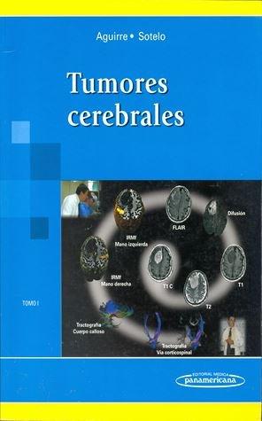 Tumores Cerebrales. Tomo I. Biología de los tumores - Aguirre / Sotelo