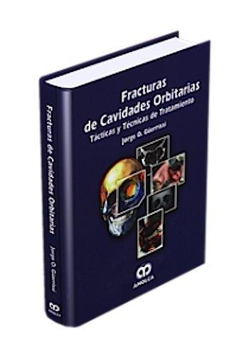 9789806574359: Fracturas de cavidades orbitarias. Tácticas y técnicas de Tratamiento (Spanish Edition)