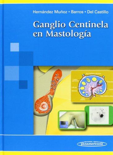 GANGLIO CENTINELA EN MASTOLOGÍA: HERNÁNDEZ MUÑOZ, GERARDO;CARLOS