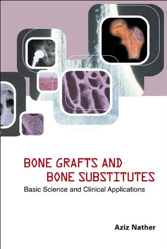 9789812560896: Bone Grafts And Bone Substitutes: Basic Science And Clinical Applications