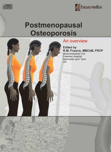 Postmenopausal Osteoporosis: An Overview (Orthopaedics)