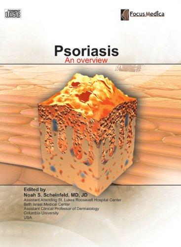 Psoriasis: An Overview (Dermatology): Noah S. Scheinfeld
