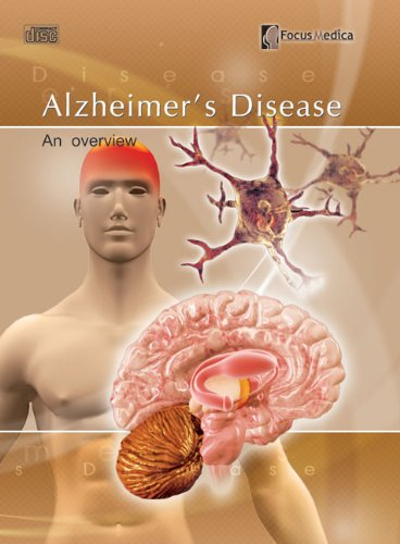 9789814206365: Alzheimer's Disease: An Overview (Neurology)